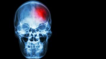 Doctors find veterans, domestic violence survivors suffer same brain disease symptoms as NFL players with CTE