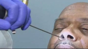 Man's runny nose was actually leaking brain fluid