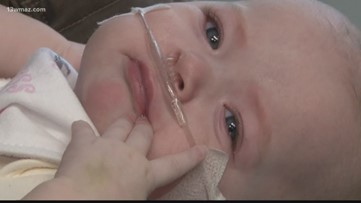 Warner Robins 6-month-old goes home for the first time after rare surgery