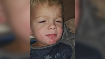 'I saw four or five with it:' Central Georgia cases of hand, foot, and mouth disease