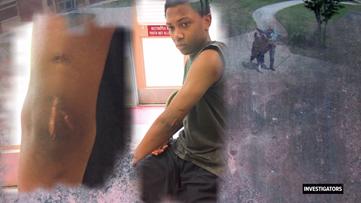 Family says officer broke teen's arm over a sandwich